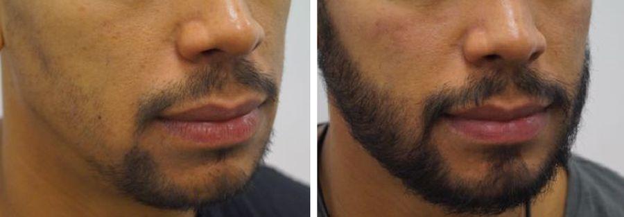beste haartransplantatie, snor- baardtransplantatie