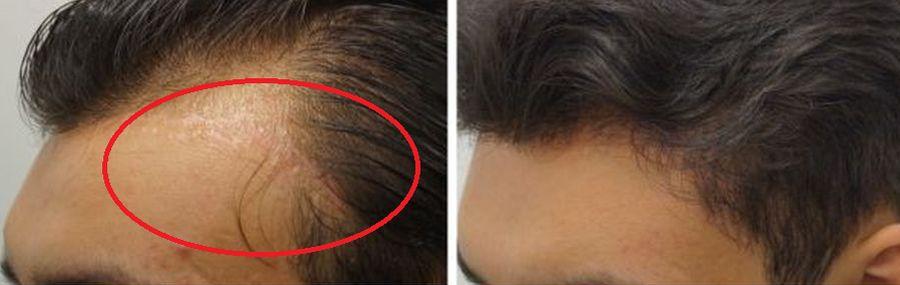 beste haartransplantaties, behandeling littekenna een operatie