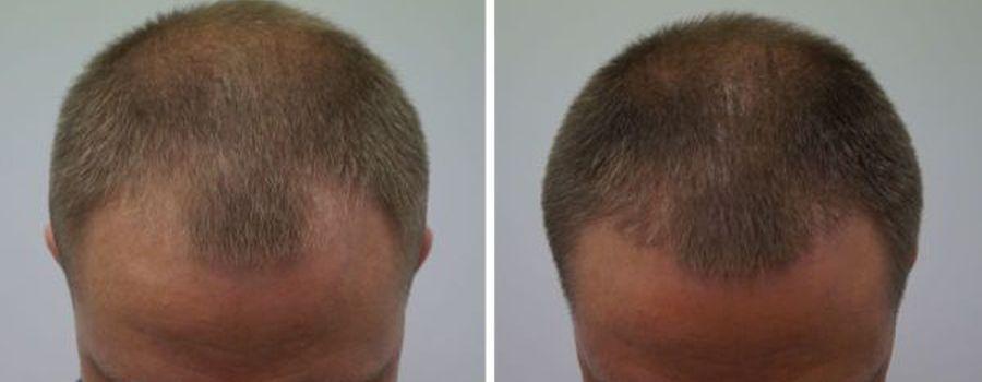 haartransplantatie inhammen man voor en na