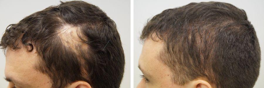 Haartransplantatie bij littekens