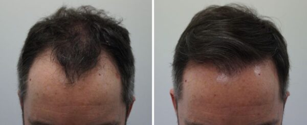 Natuurlijke haartransplantatie