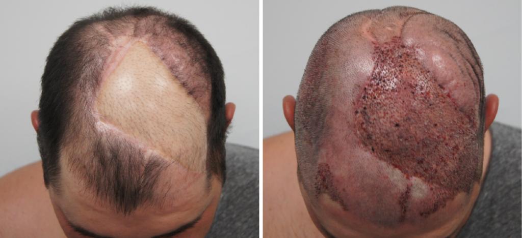 Haartransplantatie Freddie Jansen bij FB clinic