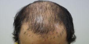 herstel onnatuurlijke haartransplantatie