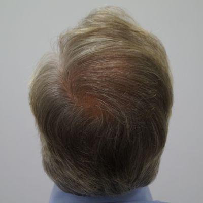 Voor en na een haartransplantatie