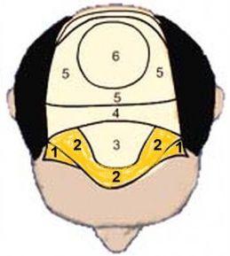 haargrens- haarlijn verlagen bij mannen