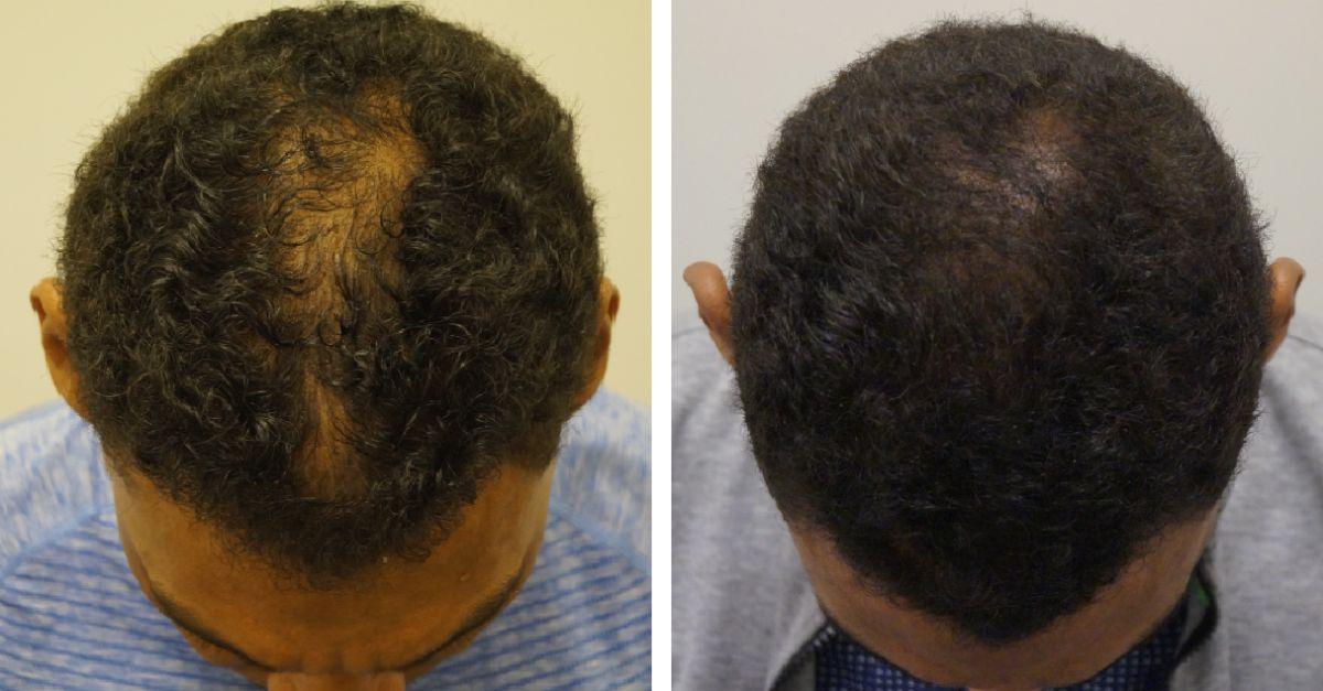 haartransplantatie kroes- afrohaar