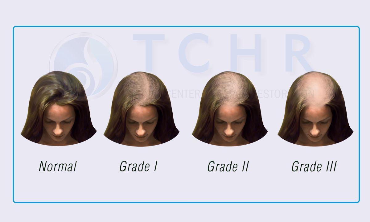 haaruitval- haartransplantatie bij vrouwen