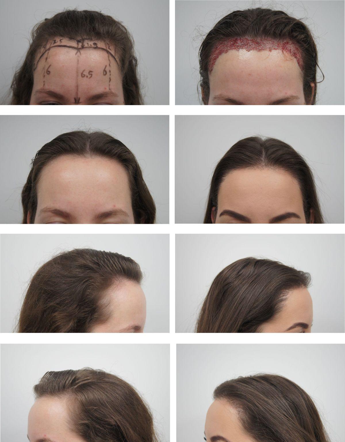 haartransplantatie voor en na een behandeling, haarlijn verlagen, voorhoofd verkleinen, vrouw
