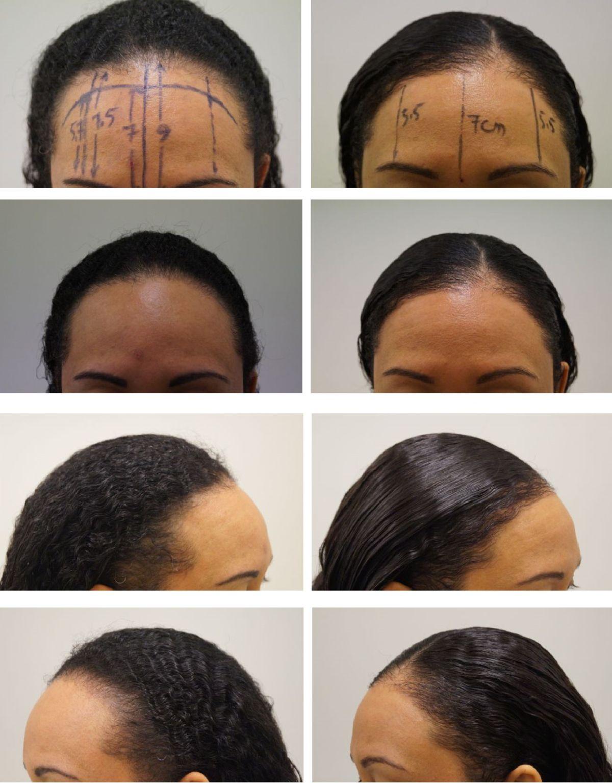 haartransplantatie voor en na een behandeling, haarlijn verlagen, voorhoofd verkleinen, vrouw, kroes