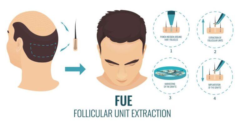FUE-haartransplantatie-FB-Clinic-in-Rotterdam