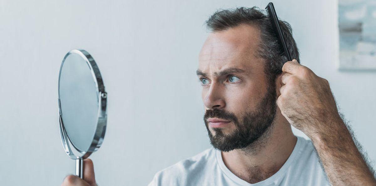 Haartransplantatie op inhammen, teruggetrokken haargrens, fb clinic Rotterdam