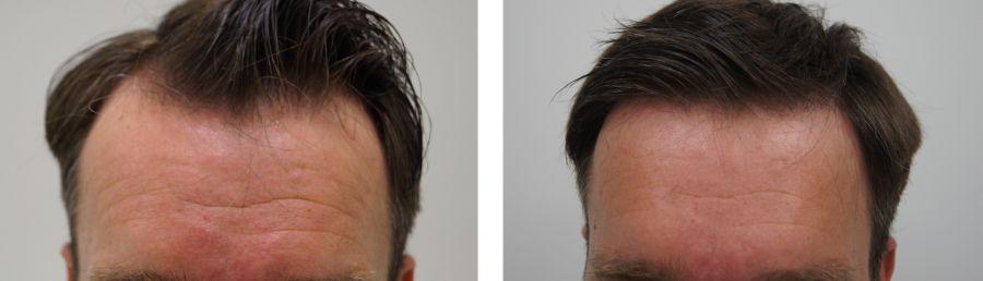 haargrens-verlagen-perfecte-haarlijn-voorhoofd-verkleinen-man