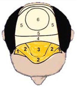 wat-kost-haartransplantatie-voorkant-hoofd