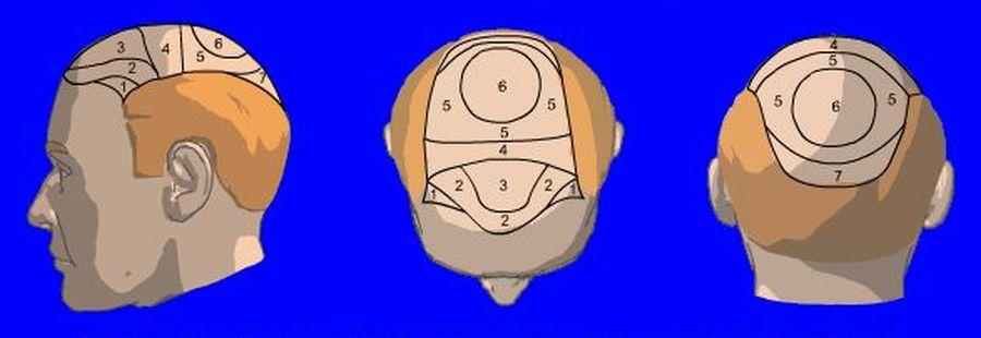 Inschatting aantal grafts voor uw haartransplantatie